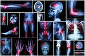 stock photo of gout  - Collection x - JPG