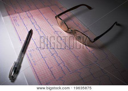 EKG analyzing