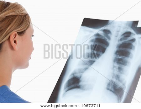 Isolated Blond-haired Doctor Looking At An X-ray