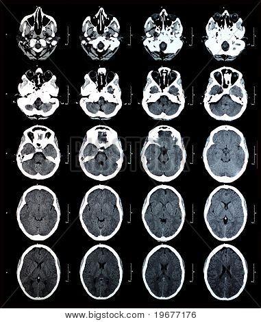 Ct Brain Images