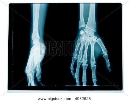 Mão e pulso radiografia