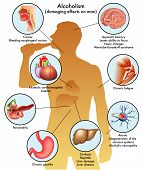 picture of libido  - medical illustration of the damage caused by alcohol on man - JPG