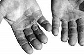 stock photo of callus  - Worker is showing his chapped hands dirty and injured palms against white background - JPG