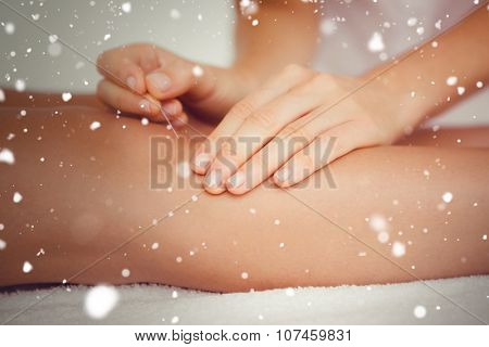Snow against woman holding a needle in an acupuncture therapy