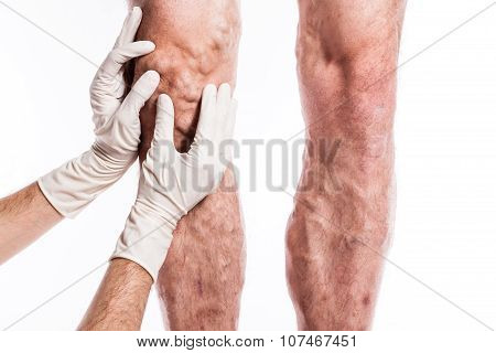 Doctor In Medical Gloves Examines A Person With Varicose Veins Of The Lower Extremities And Venous T