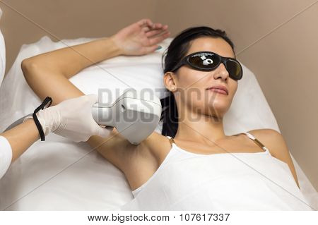 Woman having underarm Laser hair removal epilation