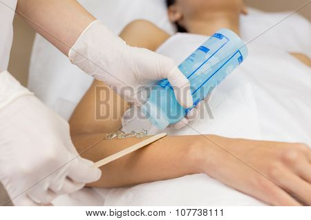 Beautician apply cooling gel for hair removal