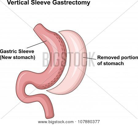 Illustration of Vertical Sleeve Gastrectomy (VSG)