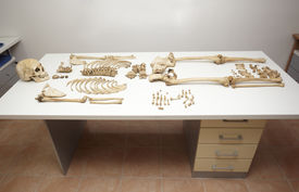 foto of autopsy  - close up of a skeleton on white table in autopsy room - JPG