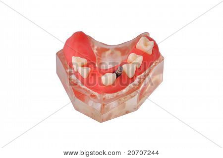 Jaw With Implant