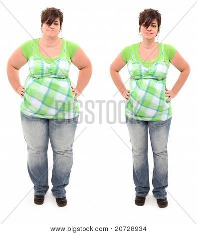 Before And After Overweight 45 Year Old Woman
