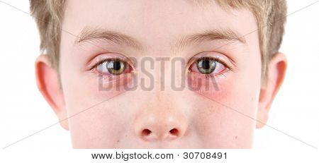 Boy with conjunctivitis