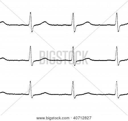 Ecg test lines