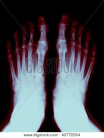 Dedos do pé expostos na radiografia