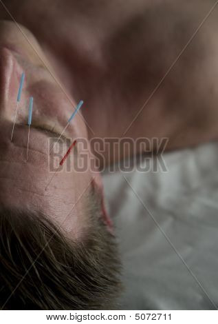 Man Getting Facial Acupuncture