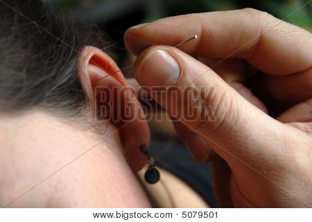 Acupunture Needles In The Ear