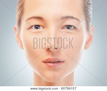 Skin Of Woman Before And After The Cosmetics Procedure