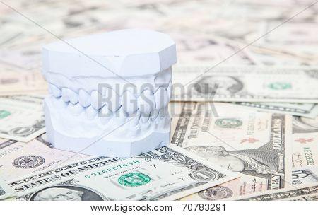Plaster cast of teeth on dollar notes