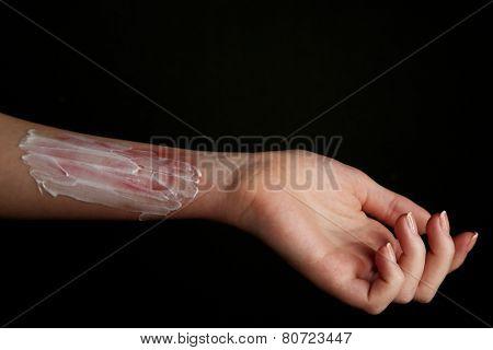 Treatment of burns on female hand on black background