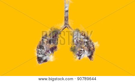 x-ray cigarette smoke in lungs