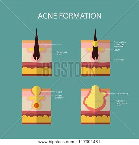 Formation of skin acne or pimple. The sebum in the clogged pore promotes the growth of a certain bac