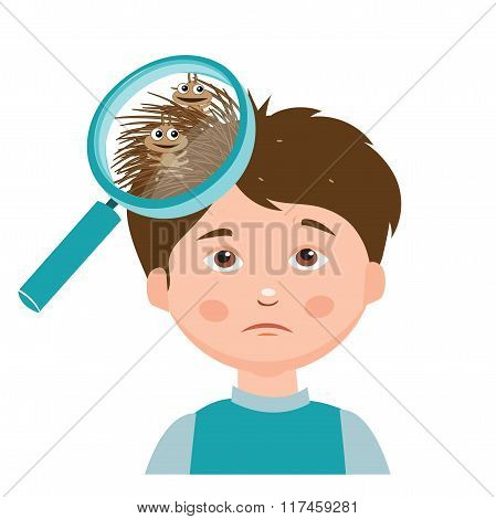 Boy With Lice. Magnifying Glass Close Up Of A Head.