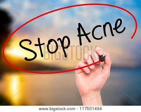 Man Hand Writing Stop Acne  With Black Marker On Visual Screen.