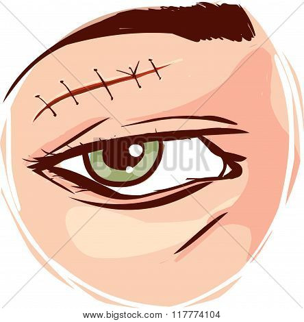 Vector - Illustration Of A Receiving First Aid, Injury Or Cut And Sutured Face