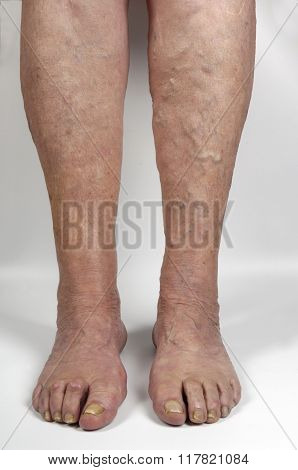 Varicose Veins In The Leg Of A Woman,