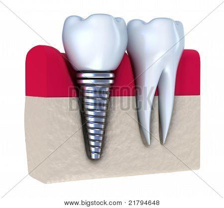 Implantes dentales - implantado en el hueso de la mandíbula. Aislado en blanco