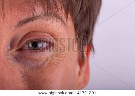 Close-up View Of An Elderly Person's Eye