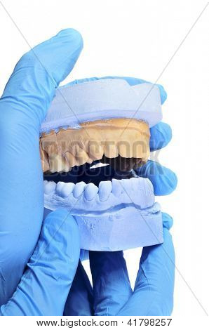 someone wearing gloves showing a dental mould with a prosthesis