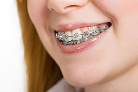 stock photo of overbite  - Beautiful young woman with brackets on teeth close up - JPG