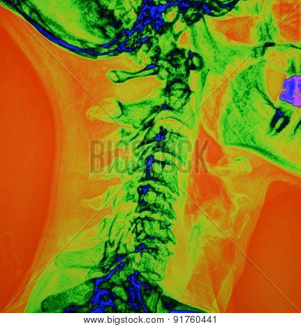 Color Spinal X Ray