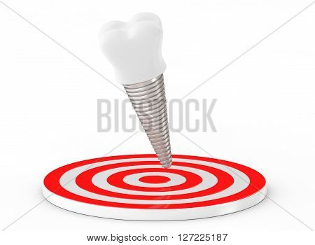 Stomatology concept. Tooth Implant over Target on a white background. 3d Rendering
