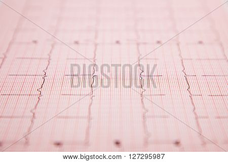 Generic ficticious medical report and cardiogram