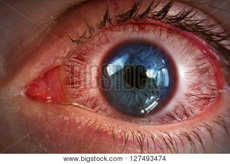 Red bloodshot eyeball for allergy medical imagery background