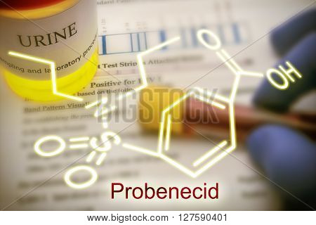 Tests for Research of urine Probenecid is able to inhibit completely the renal excretion of certain drugs dope concept of doping in the sport
