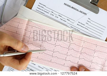 Male Medicine Doctor Hands Hold And Show To Patient Cardiogram