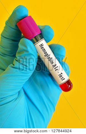 Test tube with blood sample for hemoglobin A1c (HbA1c) test, diabetes diagnosis