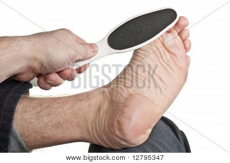 Removing Callus From Toe Ball