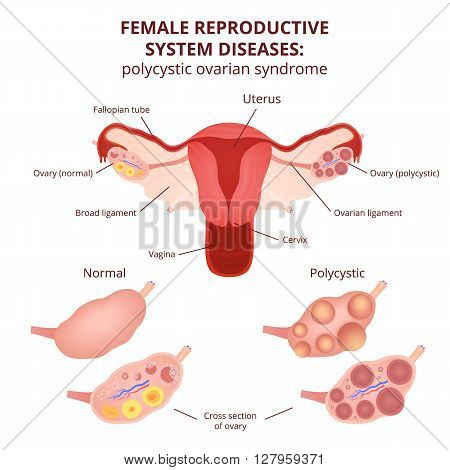 female reproductive system, the uterus and ovaries scheme, polycystic ovary syndrome, ovarian cyst
