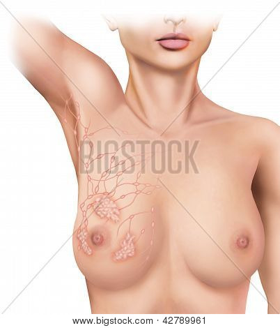 breast cancer in lymph nodes