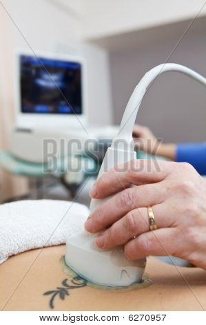 Spine Ultrasound