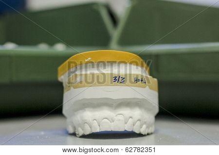 denture prosthetic