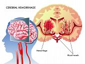 foto of hemorrhage  - medical illustration of the effects of the cerebral hemorrhage - JPG