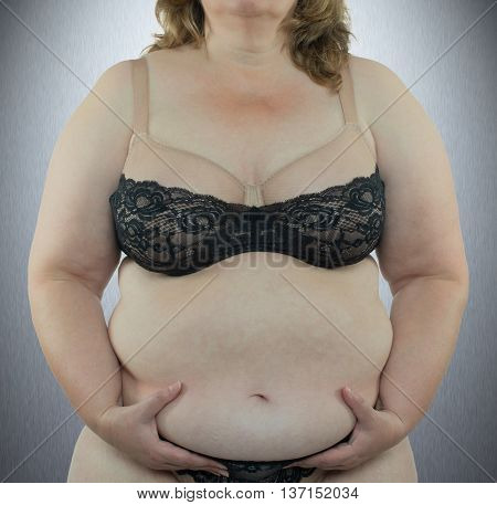 Woman with obesity showing the affected body parts