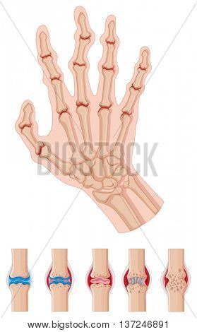 Rheumatoid arthritis in human hands illustration