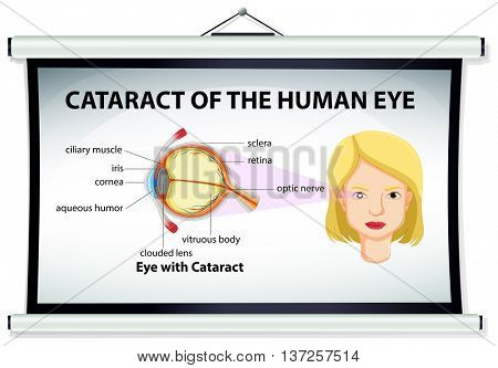 Chart showing cataract of human eye illustration