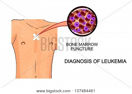 leukemia. illustration of analysis of bone marrow biopsy
